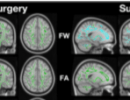 More freewater may mean better healthier brain response
