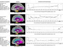 Brain Burden and Cognitive Reserve